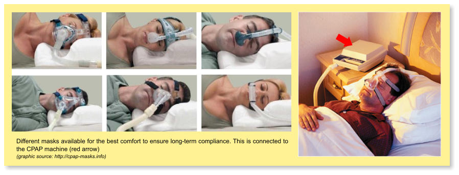 Different masks available for the best comfort to ensure long-term compliance. This is connected to the CPAP machine (red arrow) (graphic source: http://cpap-masks.info)