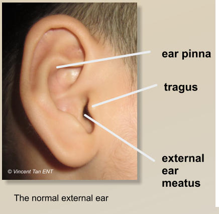 Vincent ent head and neck surgery specialist clinic klang shah the normal ear cross section notice the outer skin of the eac is thicker and has glands red asterisk while the inner part is thinner with no glands ccuart Gallery