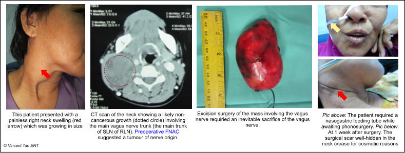 This patient presented with a painless right neck swelling (red arrow) which was growing in size  © Vincent Tan ENT CT scan of the neck showing a likely non-cancerous growth (dotted circle) involving the main vagus nerve trunk (the main trunk of SLN of RLN). Preoperative FNAC suggested a tumour of nerve origin.  Excision surgery of the mass involving the vagus nerve requiried an inevitable sacrifice of the vagus nerve.  Pic above: The patient required a nasogastric feeding tube while awaiting phonosurgery. Pic below: At 1 week after surgery. The surgical scar well-hidden in the neck crease for cosmetic reasons