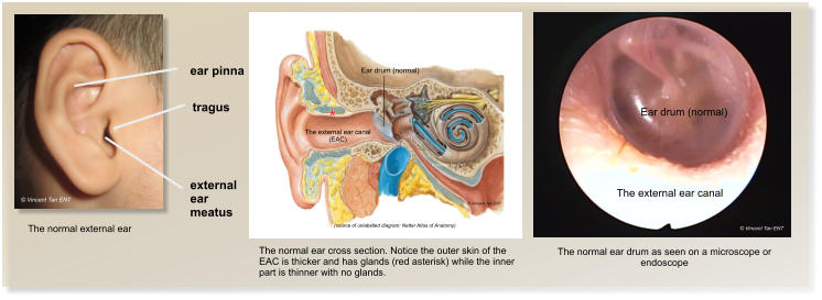 © Vincent Tan ENT The external ear canal Ear drum (normal) © Vincent Tan ENT (source of unlabelled diagram: Netter Atlas of Anatomy)  © Vincent Tan ENT The external ear canal (EAC) Ear drum (normal) ear pinna The normal external ear tragus external ear meatus © Vincent Tan ENT The normal ear cross section. Notice the outer skin of the EAC is thicker and has glands (red asterisk) while the inner part is thinner with no glands. The normal ear drum as seen on a microscope or endoscope *