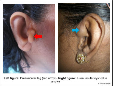 Left figure: Preauricular tag (red arrow). Right figure:  Preauricular cyst (blue arrow) © Vincent Tan ENT